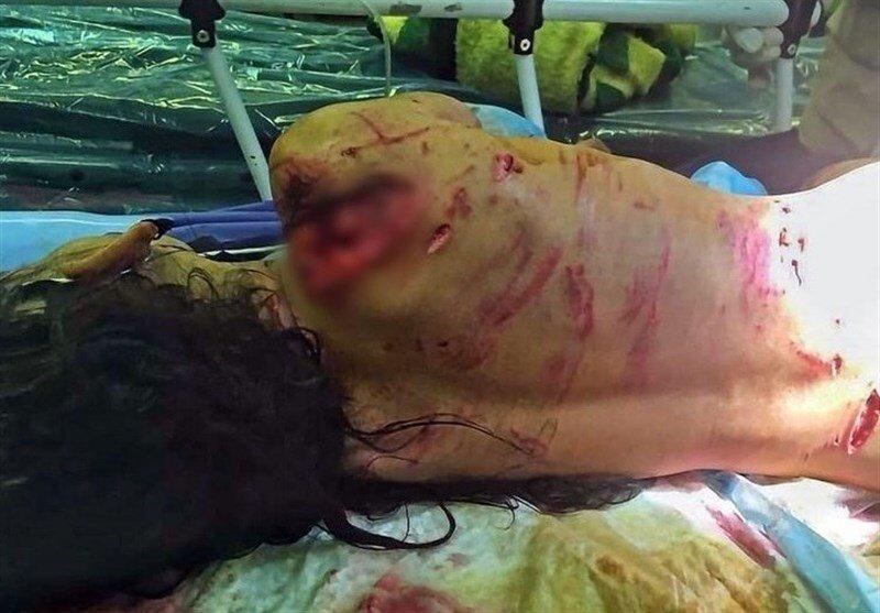 شرح شهرداری درباره حمله سگ های ولگرد به یک دختربچه در پایتخت