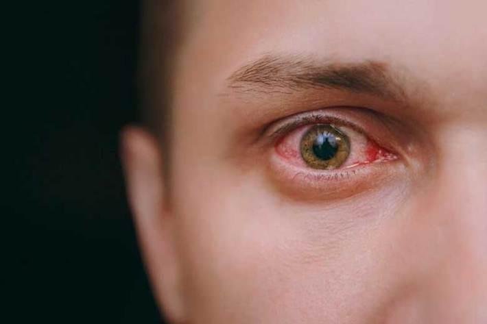 قرمزی چشم از علایم کرونا است